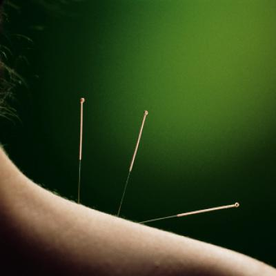 Acupuncture epaule
